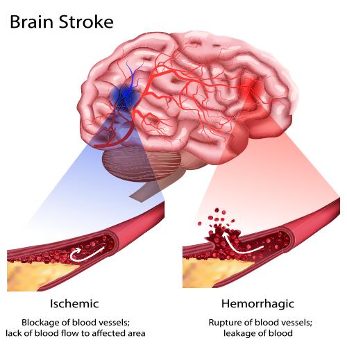 What Is Stroke Cns Traumatic Brain Injury Rehabilitation